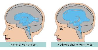 Normal vs Hydrocephalic Ventricles