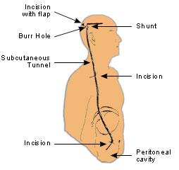 Ventriculo-Peritoneal Shunt