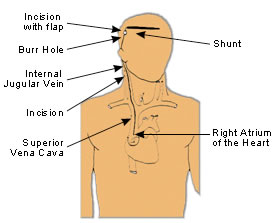 Ventriculo-Atrial Shunt