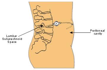 Lumbo-Peritoneal