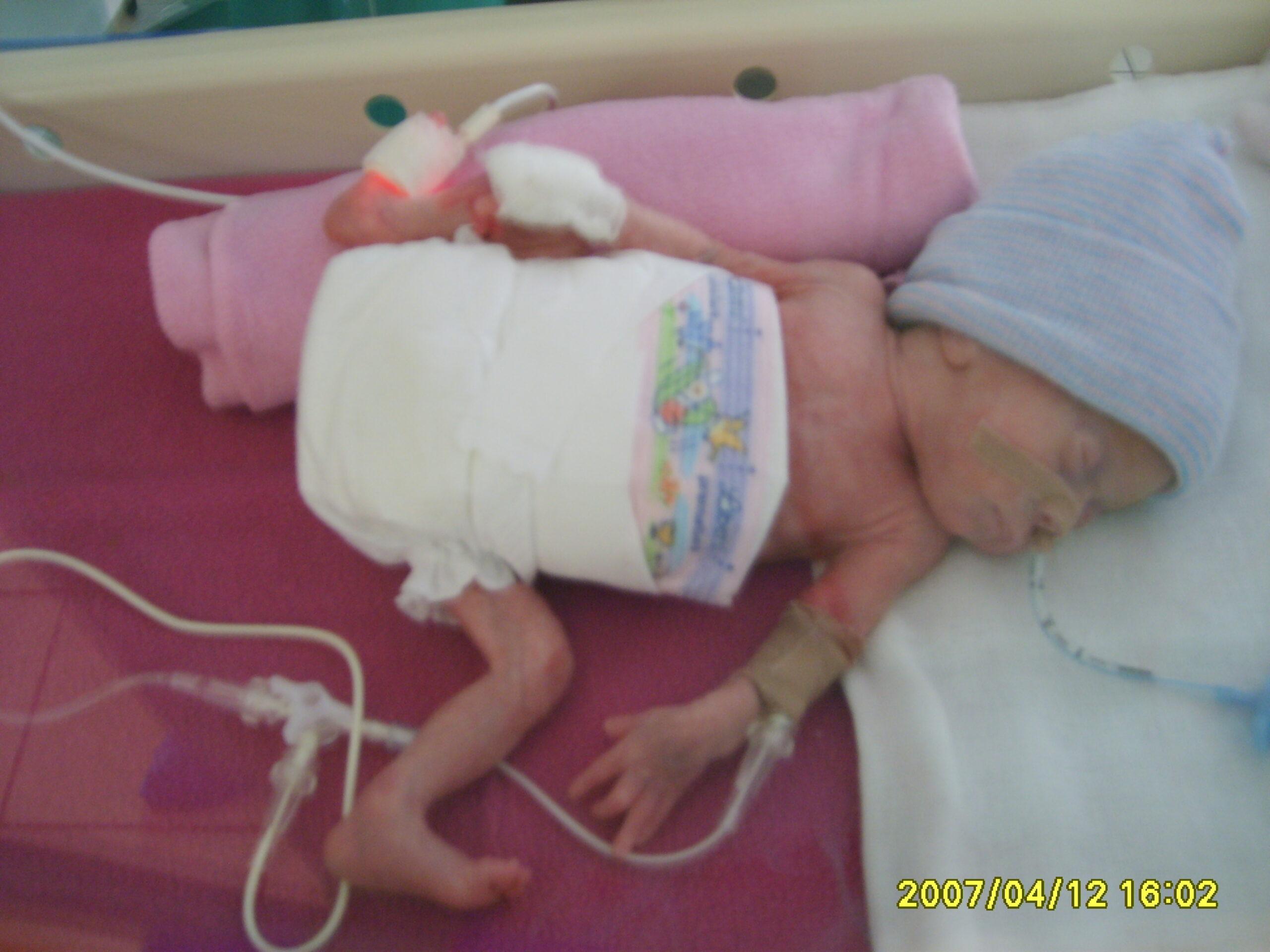 Janka születése után nem sokkal